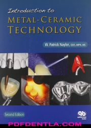 Introduction to Metal-Ceramic Technology, 2nd Edition (pdf)