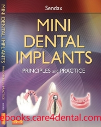 Mini Dental Implants: Principles and Practice (pdf)
