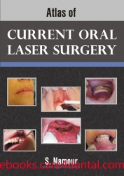 Atlas of Current Oral Laser Surgery (pdf)
