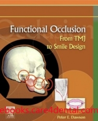 Functional Occlusion: From TMJ to Smile Design (pdf)