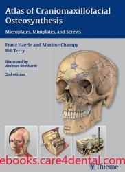 Atlas of Craniomaxillofacial Osteosynthesis: Microplates, Miniplates, and Screws (pdf)