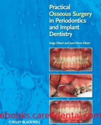 Practical Osseous Surgery in Periodontics and Implant Dentistry (pdf)
