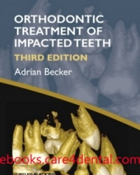 Orthodontic Treatment of Impacted Teeth, 3rd Edition (pdf)