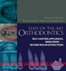 State-of-the-Art Orthodontics: Self-Ligating Appliances, Miniscrews and Second Molars Extraction (pdf)