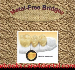 Metal free Bridges (pdf)