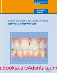 Indirect Restorations (.epub)