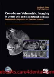 Cone-beam Volumetric Imaging in Dental, Oral and Maxillofacial Medicine: Fundamentals, Diagnostics, and Treatment Planning (pdf)