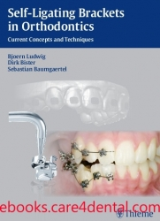 Self-ligating Brackets in Orthodontics: Current Concepts and Techniques (pdf)