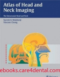 Atlas of Head and Neck Imaging: The Extracranial Head and Neck (pdf)