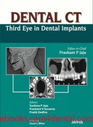 Dental CT: Third Eye in Dental Implants (pdf)