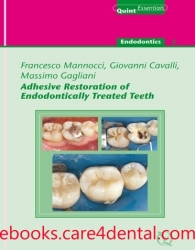 Adhesive Restoration of Endodontically Treated Teeth (.EPUB)