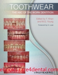 Toothwear: The ABC of the Worn Dentition (pdf)