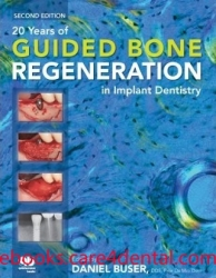 20 Years of Guided Bone Regeneration in Implant Denistry (pdf)
