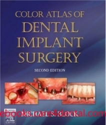 Color Atlas of Dental Implant Surgery, 2nd Edition (pdf)