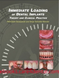 Immediate Loading of Dental Implants: Theory and Clinical Practice (pdf)