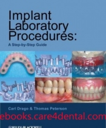 Implant Laboratory Procedures: A Step-by-Step Guide (pdf)