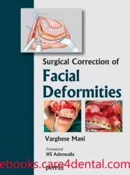 Surgical Correction of Facial Deformities (pdf)