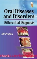 Oral Diseases and Disorders: Differential Diagnosis (pdf)