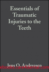 Essentials of Traumatic Injuries to the Teeth: A Step-by-Step Treatment Guide, 2nd Edition
