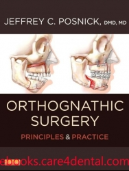 Orthognathic Surgery: Principles and Practice – 2 Volume Set (pdf)