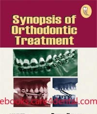 Synopsis of Orthodontic Treatment (pdf)
