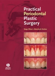 Practical Periodontal Plastic Surgery (pdf)