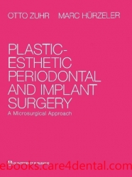 Plastic-Esthetic Periodontal and Implant Surgery: A Microsurgical Approach (pdf)