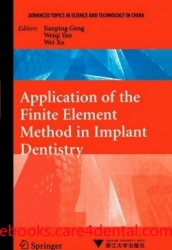 Application of the Finite Element Method in Implant Dentistry (pdf)