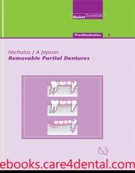 Removable Partial Dentures (PDF+EPUB)