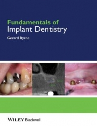 Fundamentals of Implant Dentistry (pdf)