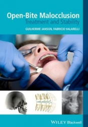 Open-Bite Malocclusion: Treatment and Stability (pdf)