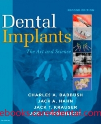Dental Implants: The Art and Science, 2nd Edition (pdf)