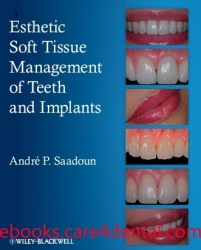 Esthetic Soft Tissue Management of Teeth and Implants (pdf)
