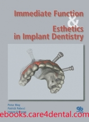 Immediate Function and Esthetics in Implant Dentistry (pdf)