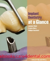 Implant Dentistry at a Glance (pdf)