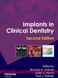 Implants in Clinical Dentistry, 2nd Edition (pdf)