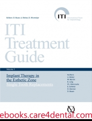 ITI Treatment Guide, Vol 1: Implant Therapy in the Esthetic Zone for Single-Tooth Replacements (.epub)
