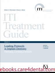 ITI Treatment Guide, Vol 2: Loading Protocols in Implant Dentistry—Partially Dentate Patients (.epub)