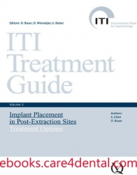 ITI Treatment Guide, Vol 3: Implant Placement in Post-Extraction Sites – Treatment Options (.epub)