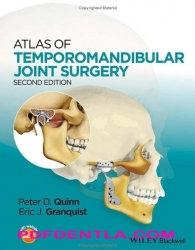 Atlas of Temporomandibular Joint Surgery, Second edition (pdf)