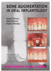 Bone Augmentation In Oral Implantology (pdf)