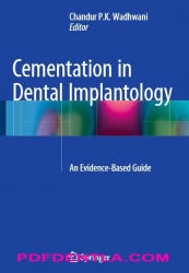Cementation in Dental Implantology: An Evidence-Based Guide (pdf)