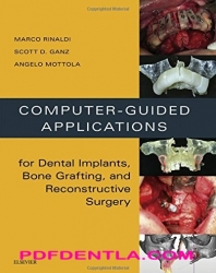 Computer-Guided Applications for Dental Implants, Bone Grafting, and Reconstructive Surgery (pdf)