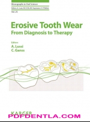 Erosive Tooth Wear - From Diagnosis to Therapy Monographs in Oral Science, Vol. 25 (pdf)