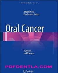Oral Cancer: Diagnosis and Therapy (pdf)