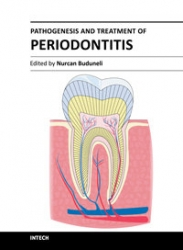 Pathogenesis and Treatment of Periodontitis (pdf)